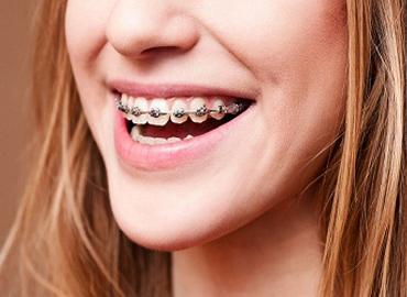 Niềng răng có đau không, đau đến cỡ nào?