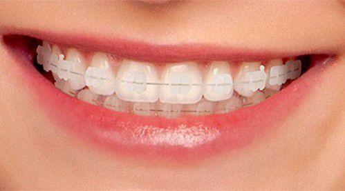 niềng răng pha lê tại vinh