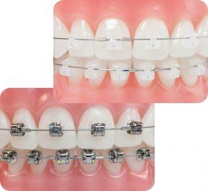 niềng răng có đau không tại vinh