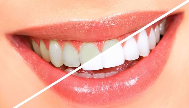 Tẩy trắng răng đẹp và an toàn