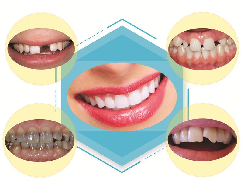 Lợi ích của việc bọc răng sứ mang lại cho bạn