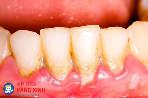 cạo vôi răng