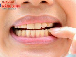 670px-Restore-Tooth-Enamel-Step-2Bullet3-392eetfn8wyxfymqwchhq8.jpg