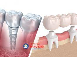 bi-mat-rang-nen-trong-rang-su-hay-cay-ghep-implant-3-39g4ty55by26jqe49qm4u8.jpg