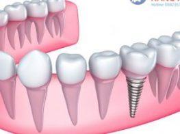 cay_implant-300x300-3a1cpcpx1tj0ap0dg567eo.jpg