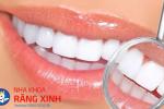 co_so_boc_rang_su_tham_my_tai_tp_vinh_nghe_an_uy_tin_va_chat_luong..-38e7124hxwqjuq43f8ks8w.png