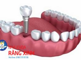cong_nghe_cay_ghep_rang_implant-38e9burz978wgj5b4dgs8w.png
