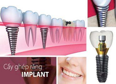 nha-khoa-nghe-an-cay-ghep-implant-34gjc0cgveu3wjfveknq4g.jpg