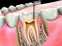 tủy-răng-34gkl5mazphgyqdbxd8y68.jpg