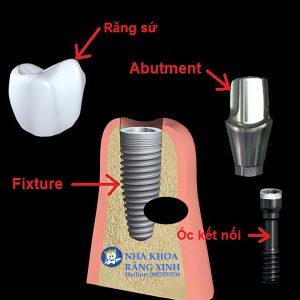 cấy trụ implant tại vinh