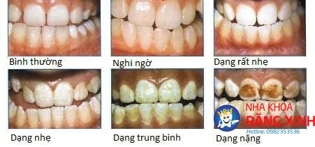 thiếu sản men răng