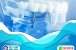 bien-chung-sau-khi-cam-ghep-implant-3cy0kzg9v4p6hlpn9otlvk.png