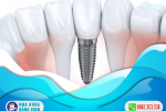 chi-phi-cay-implant-gia-re-hien-nay-3d34rq6p1ay1weesizxh4w.png