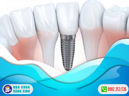chi-phi-cay-implant-gia-re-hien-nay-3d34rq6p7xfc3eex5134sg.png