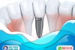 chi-phi-cay-implant-gia-re-hien-nay-3dpizipmwiksjb2l5ywmio.png