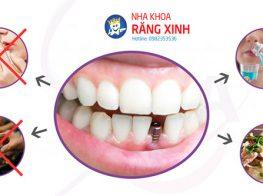 y_ghep_implant-3bi6hyz4s1t7e5xtrikzr4.jpg